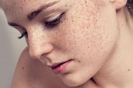 Эффективное устранение пигментных пятен на лице